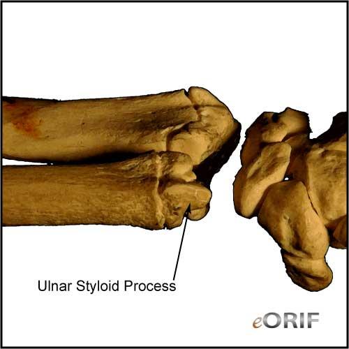 ulnar styloid process