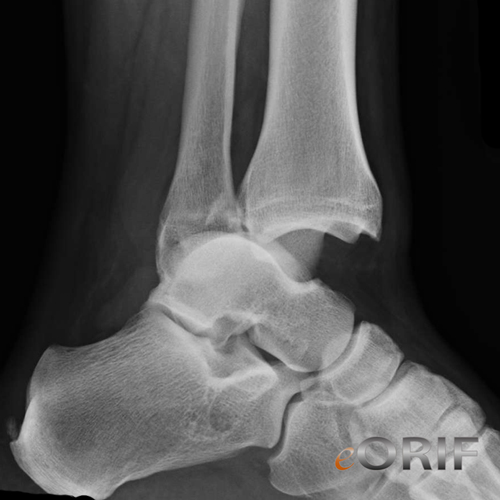 ankle dislocation xray