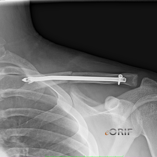 clavicle fracture sonoma nail