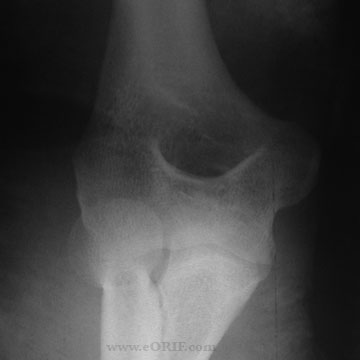 elbow dislocation xray