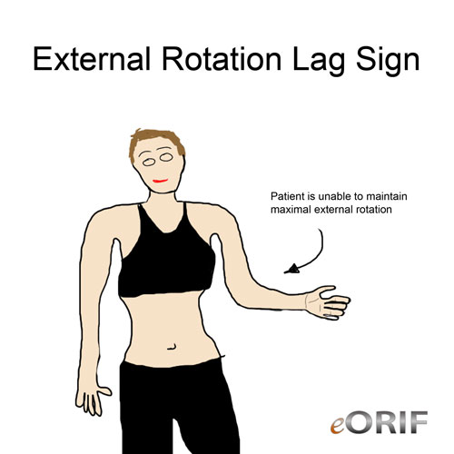 External Rotation Lag Sign picture
