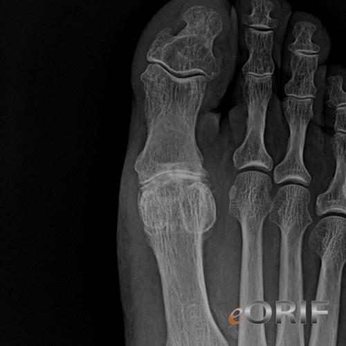 mtp joint osteoarthritis icd 10