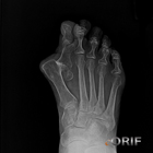 hallux valgus dislocation xray