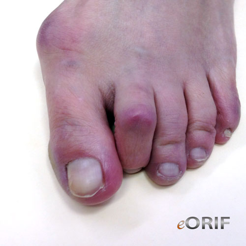 hammer toe splint
