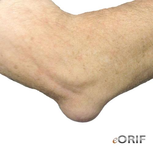 Olecranon Bursitis M7020 72633 Eorif