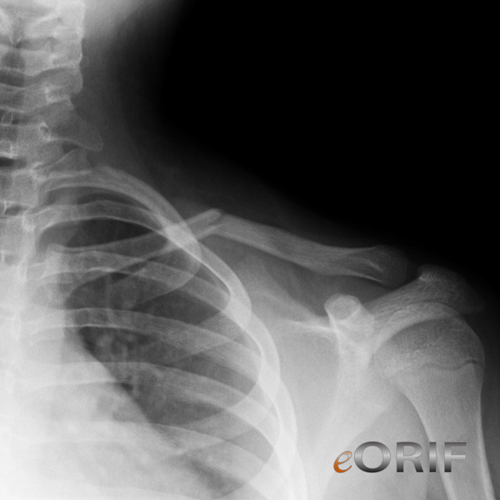pediatric clavicle fracture