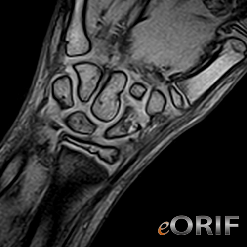 pediatric scaphoid fracture mri