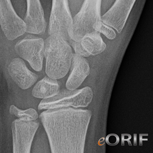 pediatric scaphoid fracture xray
