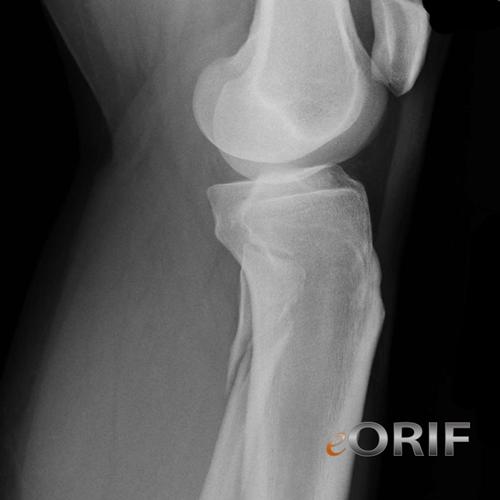 proximal fibular fracture