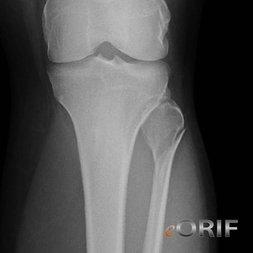 proximal fibula fracture
