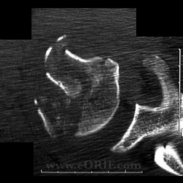 Proximal Humerus Fracture CT