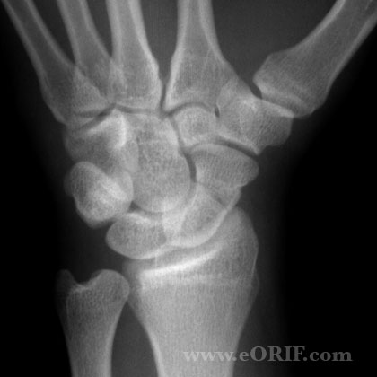 Acute scaphoid fracture xray