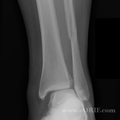 Lateral malleolus fracture syndesmosis injury xray