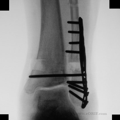 Ankle syndesmosis fixation xray