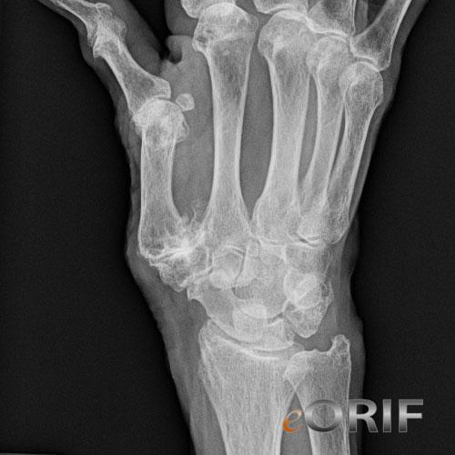 metacarpophalangeal joint osteoarthritis icd 10)