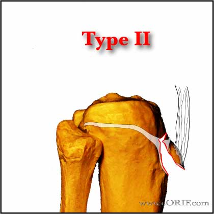 Tibial Tubercle Avlusion Fracture Type II