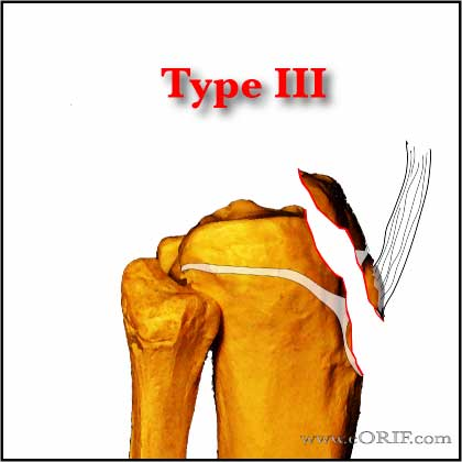 Tibial Tubercle Avlusion Fracture Type III