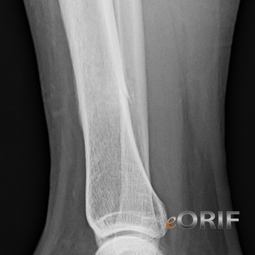 tibial shaft stress fracture xray