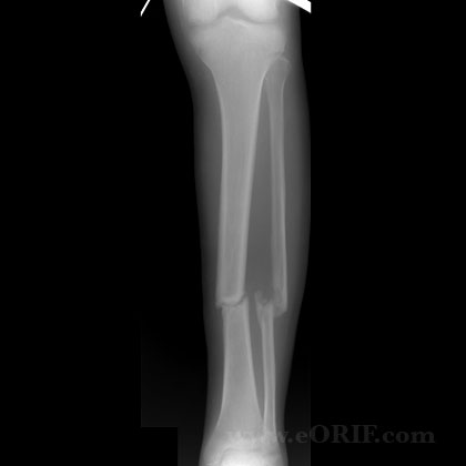 Tibial shaft fracture nonunion A/P xray