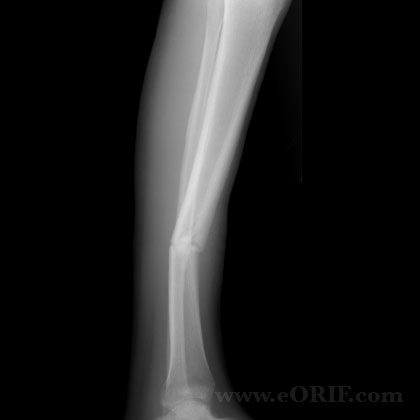 Tibial shaft fracture nonunion lateral xray
