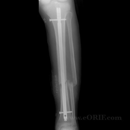 Tibial shaft fracture nonunion IM nail xray