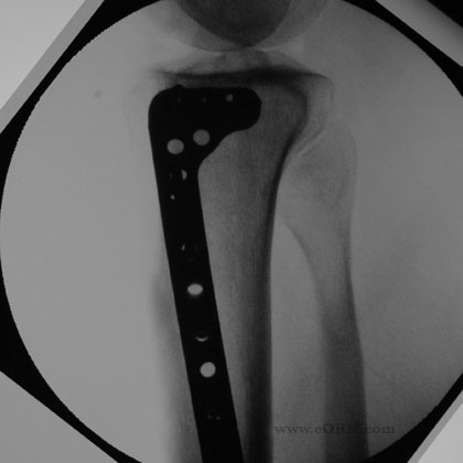 tibial plateau fracture xray