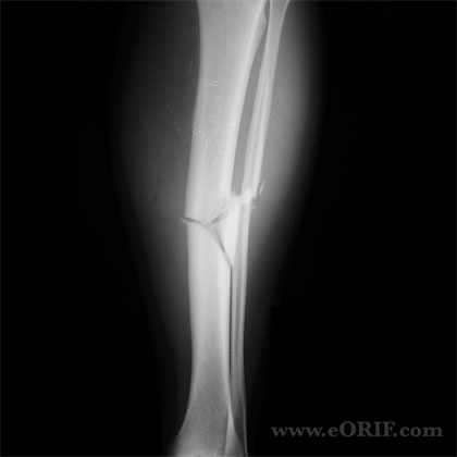 Tibial shaft fracture xray