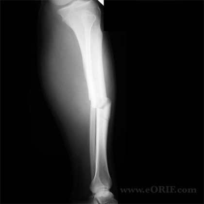 Tibial shaft fracture lateral view xray