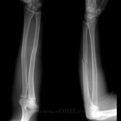ulnar shaft fracture xray