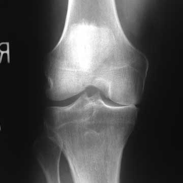 medial compartment arthritis xray