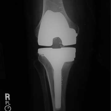 revision unicompartmental knee xray
