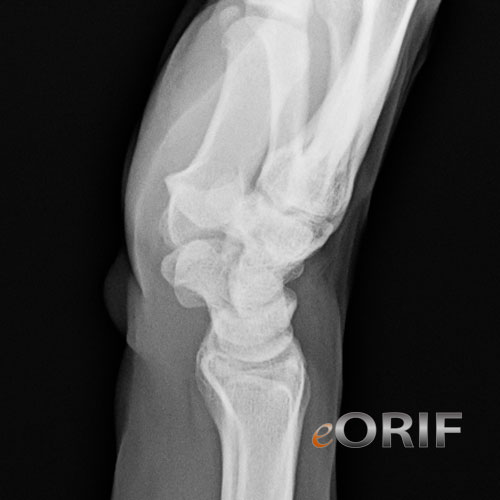 wrist lateral xray
